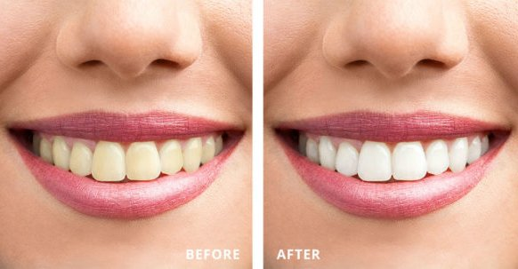 Radiance Teeth Whitening review
