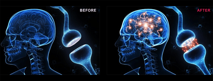 genbrain before after