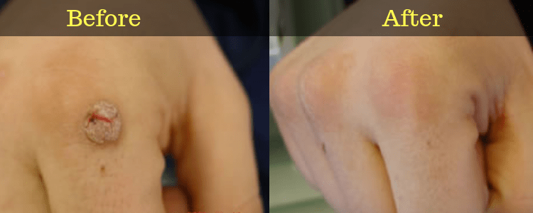 Wartrol Before and After on Hand Wart