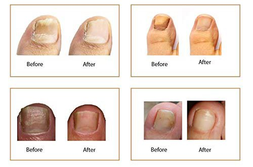 fungus eliminator before and after pic