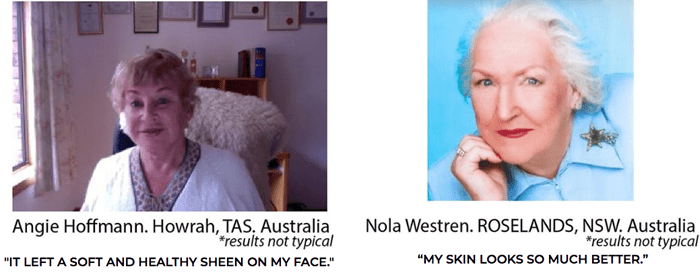Lifting & Firming Cream before and after pic